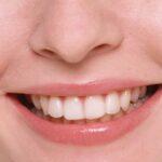 Visite gratuite in tutta Italia per protesi dentarie